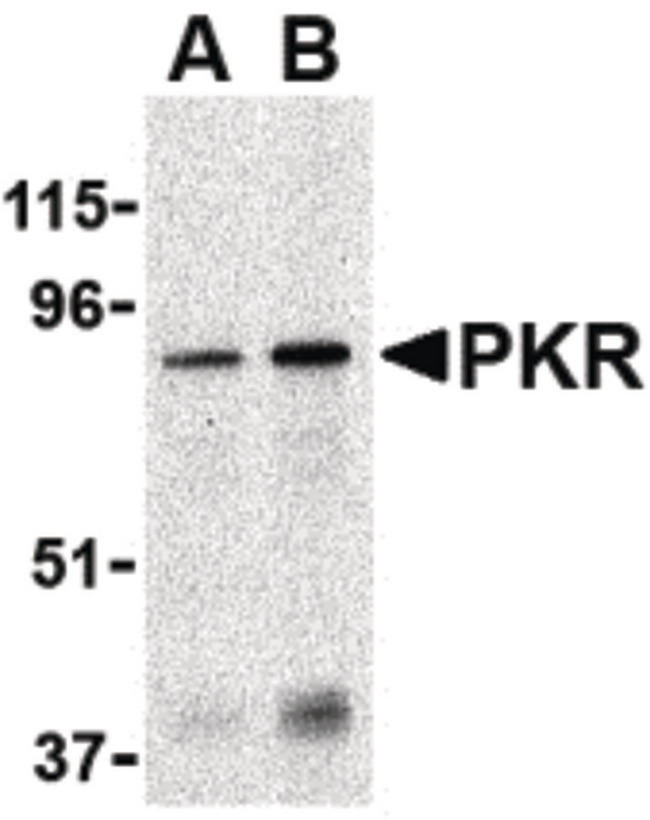 EIF2AK2 / PKR Antibody - Western blot of PKR in Caco-2 whole cell lysate with PKR antibody at (A) 1 and (B) 2 ug/ml.