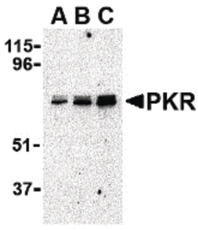 EIF2AK2 / PKR Antibody - Western blot of PKR in A431 whole cell lysate with PKR antibody at (A) 0.5, (B) 1 and (C) 2 ug/ml.