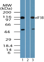 EIF3B Antibody - Western blot of eIF3B in A431 cell lysate in the 1) absence and 2) presence of immunizing peptide and 3) NIH 3T3 cell lysate using EIF3B Antibody at 0.25 ug/ml, 0.25 ug/ml and 0.05 ug/ml respectively.
