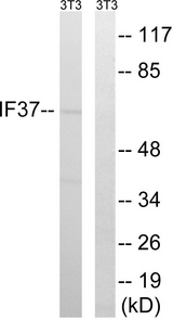 EIF3D Antibody - Western blot analysis of lysates from NIH/3T3 cells, using EIF3D Antibody. The lane on the right is blocked with the synthesized peptide.