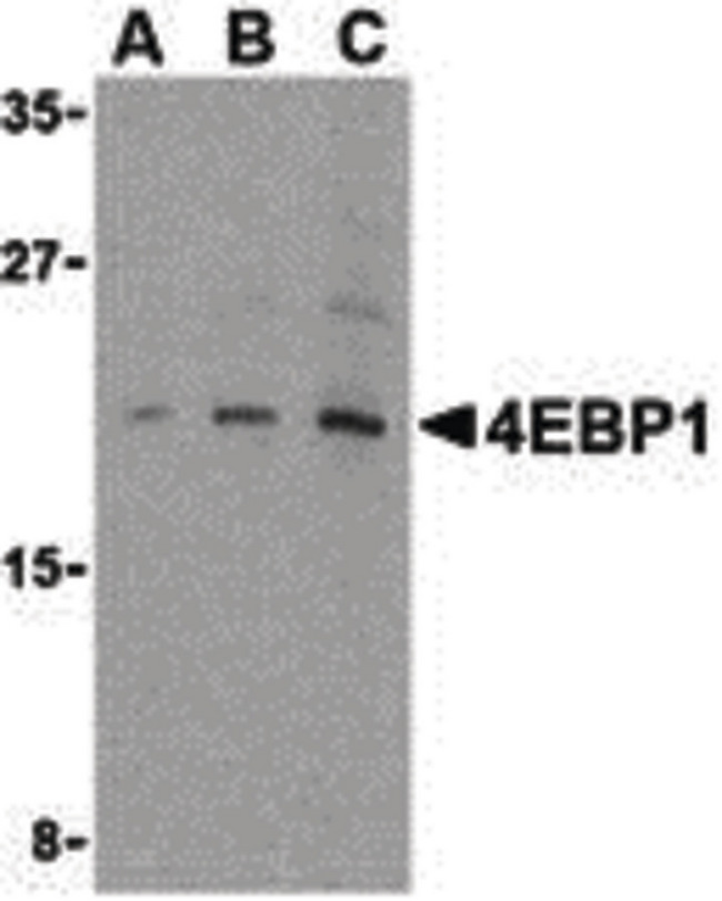 EIF4EBP1 / 4EBP1 Antibody - Western blot of 4E-BP1 in 3T3 cell lysate with 4E-BP1 antibody at (A) 2.5, (B) 5 and (C) 10 ug/ml.