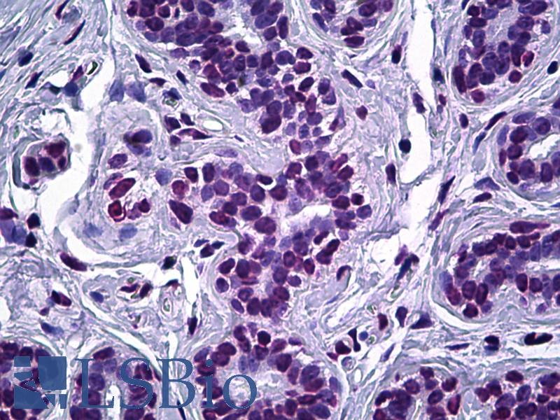 ELAC2 Antibody - Anti-ELAC2 antibody IHC of human breast, epithelium. Immunohistochemistry of formalin-fixed, paraffin-embedded tissue after heat-induced antigen retrieval. Antibody dilution 1:100.