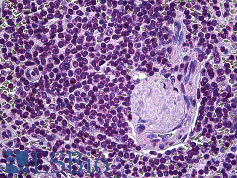 ELAC2 Antibody - Anti-ELAC2 antibody IHC of human spleen. Immunohistochemistry of formalin-fixed, paraffin-embedded tissue after heat-induced antigen retrieval. Antibody dilution 1:100.