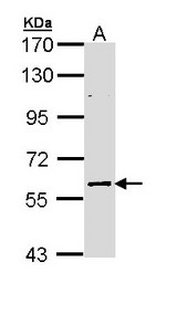 Sample (30 ug of whole cell lysate). A: NT2D1 B: IMR32 7.5% SDS PAGE ELP3 antibody ELP3 antibody diluted at 1:2000