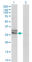 Western Blot analysis of EDN3 expression in transfected 293T cell line by EDN3 monoclonal antibody (M01), clone 2A6-2A4.Lane 1: EDN3 transfected lysate(25.5 KDa).Lane 2: Non-transfected lysate.