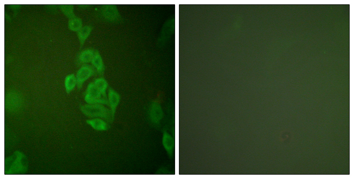 ENO2 / NSE Antibody - Immunofluorescence analysis of A549 cells, using NSE Antibody. The picture on the right is blocked with the synthesized peptide.