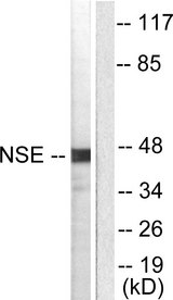 ENO2 / NSE Antibody - Western blot analysis of lysates from HepG2 cells, using NSE Antibody. The lane on the right is blocked with the synthesized peptide.