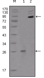 EPHB2 / EPH Receptor B2 Antibody - Western blot using EphB2 mouse monoclonal antibody against truncated EphB2 recombinant protein (1) and extracellular EphB2(aa19-476)-hIgGFc transfected CHO-K1 cell lysate(2).