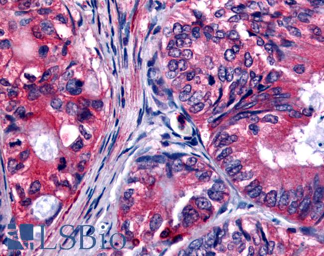 Anti-EPHB2 / EPH Receptor B2 antibody IHC of human Colon, Carcinoma. Immunohistochemistry of formalin-fixed, paraffin-embedded tissue after heat-induced antigen retrieval.