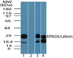 Western blot of EPM2A in human heart lysate in the 1) absence and2) presence of immunizing peptide,3) mouse heart and 4) rat heart lysate using EPM2A / Laforin Antibody at 0.25 ug/ml, 0.5 ug/ml and 0.5 ug/ml, respectively.
