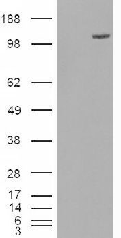 FAM62A antibody (0.5µg/ml) staining of Human Adipose lysate (35µg protein in RIPA buffer). Primary incubation was 1 hour. Detected by chemiluminescence.