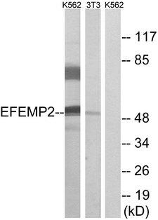 FBLN4 / EFEMP2 Antibody - Western blot analysis of lysates from K562 and NIH/3T3 cells, using EFEMP2 Antibody. The lane on the right is blocked with the synthesized peptide.