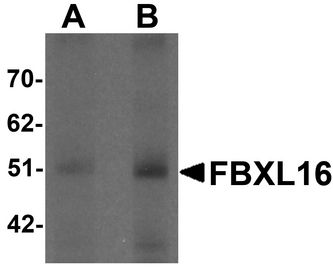 Western blot analysis of FBXL16 in human spleen tissue lysate with FBXL16 antibody at (A) 0.5 and (B) 1 ug/ml.