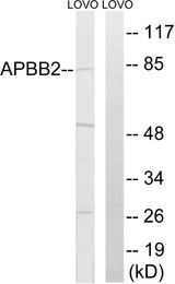 Western blot analysis of lysates from LOVO cells, using APBB2 Antibody. The lane on the right is blocked with the synthesized peptide.