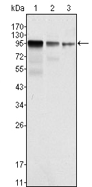 Western blot using FER mouse monoclonal antibody against NIH/3T3 (1), A549 (2) and SK-MEL-5 (3) cell lysate.