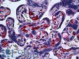 Anti-FGF1 antibody IHC of human placenta. Immunohistochemistry of formalin-fixed, paraffin-embedded tissue after heat-induced antigen retrieval. Antibody concentration 5 ug/ml.