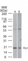 FIS1 Antibody - Western blot of Fis1 in A) HeLa and B) NIH 3T3 cell lysate using antibody at 1:1000 dilution.