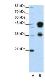 FOXA1 Antibody - FOXA1 antibody Western blot of Transfected 293T cell lysate. This image was taken for the unconjugated form of this product. Other forms have not been tested.
