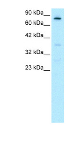 FOXE3 Antibody - FOXE3 antibody Western blot of HepG2 cell lysate. This image was taken for the unconjugated form of this product. Other forms have not been tested.