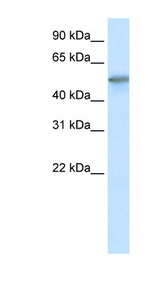 FOXO3 / FOXO3A Antibody - FOXO3 / FOXO3A antibody Western blot of Fetal skeletal muscle lysate. This image was taken for the unconjugated form of this product. Other forms have not been tested.
