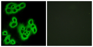 Immunofluorescence analysis of MCF7 cells, using FPR1 Antibody. The picture on the right is blocked with the synthesized peptide.
