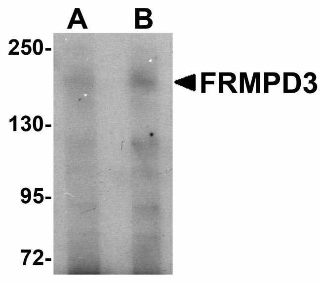 FRMPD3 Antibody - Western blot of FRMPD3 in Jurkat cell lysate with FRMPD3 antibody at (A) 1 and (B) 2 ug/ml.
