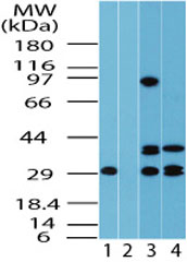 FUZ / FY Antibody - Western blot of FUZ in human lung lysate in the 1) absence and 2) presence of immunizing peptide, 3) mouse lung and 4) rat lung using FUZ / FY Antibody at 2.0 ug/ml, 2.0 ug/ml and 6.0 ug/ml respectively.