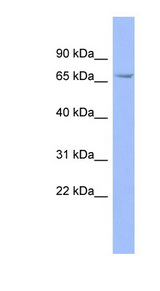 FZD5 / Frizzled 5 antibody Western blot of Fetal Stomach lysate. This image was taken for the unconjugated form of this product. Other forms have not been tested.