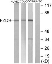Western blot analysis of lysates from HUVEC, COLO, and COS cells, using FZD9 Antibody. The lane on the right is blocked with the synthesized peptide.