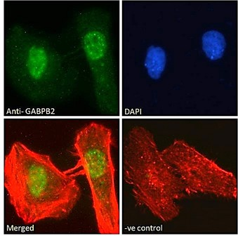 Goat Anti-GABPB2 Antibody Immunofluorescence analysis of paraformaldehyde fixed HeLa cells, permeabilized with 0.15% Triton. Primary incubation 1hr (10ug/ml) followed by Alexa Fluor 488 secondary antibody (2ug/ml), showing nuclear/nuclear speckle staining. Actin filaments were stained with phalloidin (red) and the nuclear stain is DAPI (blue). Negative control: Unimmunized goat IgG (10ug/ml) followed by Alexa Fluor 488 secondary antibody (2ug/ml).