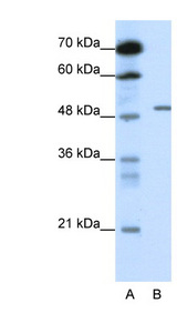 GABRB2 Antibody - GABRB2 antibody Western blot of HepG2 cell lysate. This image was taken for the unconjugated form of this product. Other forms have not been tested.