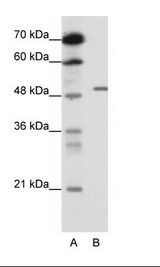 GABRB2 Antibody - A: Marker, B: HepG2 Cell Lysate.  This image was taken for the unconjugated form of this product. Other forms have not been tested.