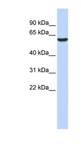 GABRB3 antibody Western blot of Fetal Liver lysate. This image was taken for the unconjugated form of this product. Other forms have not been tested.