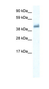 GABRE Antibody - GABRE antibody Western blot of Placenta lysate. This image was taken for the unconjugated form of this product. Other forms have not been tested.