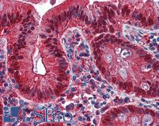 GAL4 / Galectin 4 Antibody - Anti-Galectin 4 antibody IHC of human colon. Immunohistochemistry of formalin-fixed, paraffin-embedded tissue after heat-induced antigen retrieval. Antibody concentration 1.25 ug/ml.