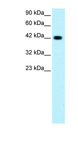 GATA3 Antibody - GATA3 antibody Western blot of Jurkat lysate. This image was taken for the unconjugated form of this product. Other forms have not been tested.