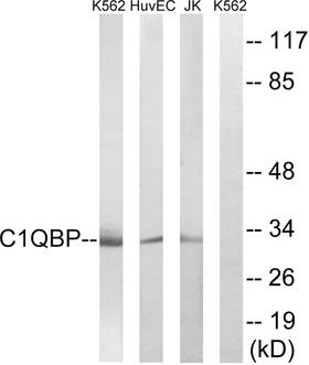 GC1qR / C1QBP Antibody - Western blot analysis of lysates from Jurkat, HUVEC, and K562 cells, using C1QBP Antibody. The lane on the right is blocked with the synthesized peptide.