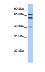 GCLC Antibody - Fetal liver lysate. Antibody concentration: 1.0 ug/ml. Gel concentration: 12%.  This image was taken for the unconjugated form of this product. Other forms have not been tested.