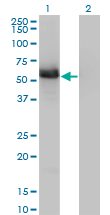 GIT2 Antibody - Western blot of GIT2 expression in transfected 293T cell line by GIT2 monoclonal antibody, clone 3B5-B9.