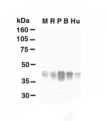 GLUL / Glutamine Synthetase Antibody - Western blot of glutamine synthase. 40 ug of lysates from mouse (lane M), rat (lane R), pig (lane P), bovine (lane B), or human (lane Hu) retina were probed. A 34 kD band was identified in lysates from retinas of all species.