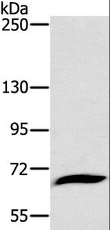 GP1BA / CD42b Antibody - Western blot analysis of Mouse liver tissue, using GP1BA Polyclonal Antibody at dilution of 1:800.