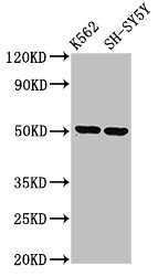 GPA33 / A33 Antibody - Western Blot Positive WB detected in: K562 whole cell lysate, SH-SY5Y whole cell lysate All lanes: GPA33 antibody at 3.2µg/ml Secondary Goat polyclonal to rabbit IgG at 1/50000 dilution Predicted band size: 36 kDa Observed band size: 50 kDa