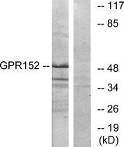 Western blot analysis of lysates from Jurkat cells, using GPR152 Antibody. The lane on the right is blocked with the synthesized peptide.