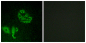 Immunofluorescence analysis of A549 cells, using GPR20 Antibody. The picture on the right is blocked with the synthesized peptide.
