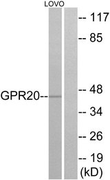 Western blot analysis of lysates from LOVO cells, using GPR20 Antibody. The lane on the right is blocked with the synthesized peptide.