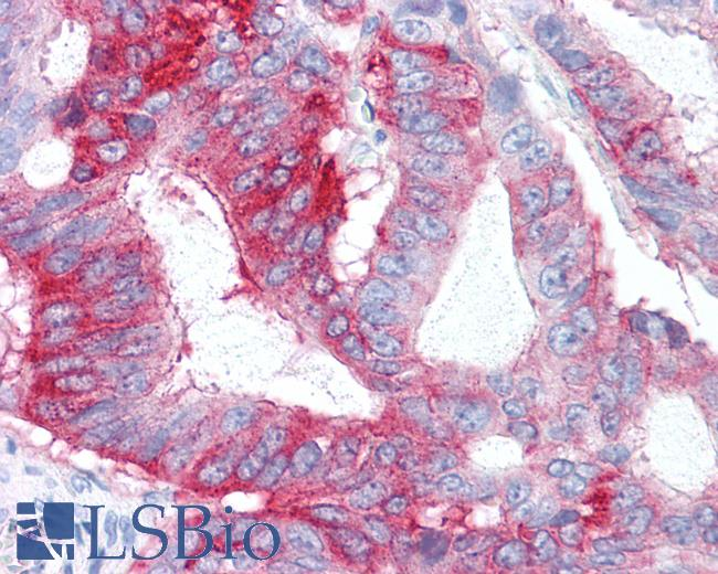 Anti-GPR31 antibody IHC of human Colon, Carcinoma. Immunohistochemistry of formalin-fixed, paraffin-embedded tissue after heat-induced antigen retrieval.