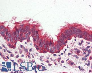 Anti-GPRC6A antibody IHC of human lung, respiratory epithelium. Immunohistochemistry of formalin-fixed, paraffin-embedded tissue after heat-induced antigen retrieval.