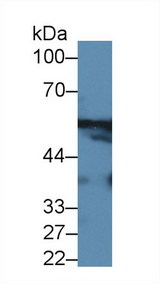 GPT / Alanine Transaminase Antibody - Western Blot; Sample: Mouse Cerebrum lysate; ;Primary Ab: 2µg/ml Rabbit Anti-Human ALT Antibody;Second Ab: 0.2µg/mL HRP-Linked Caprine Anti-Rabbit IgG Polyclonal Antibody;(Catalog: SAA544Rb19