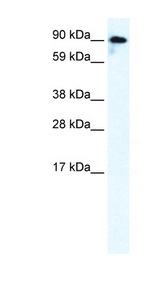 GRIK2 / GLUR6 Antibody - GRIK2 antibody Western blot of Fetal brain lysate. This image was taken for the unconjugated form of this product. Other forms have not been tested.