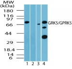 GRK5 Antibody - Western blot of human GRK5 in human liver lysate in the 1) absence, 2) presence of immunizing peptide, 3) mouse and 4) rat liver using antibody at 0.5 ug/ml (human), 4.0 ug/ml (mouse) and 2 ug/ml (rat).